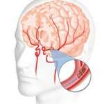 moždani_udar_simptomi