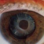 eye 500